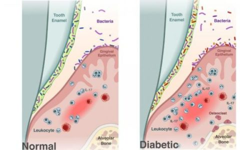 Diabetes causes shift in oral microbiome that fosters periodontitis, Penn study finds